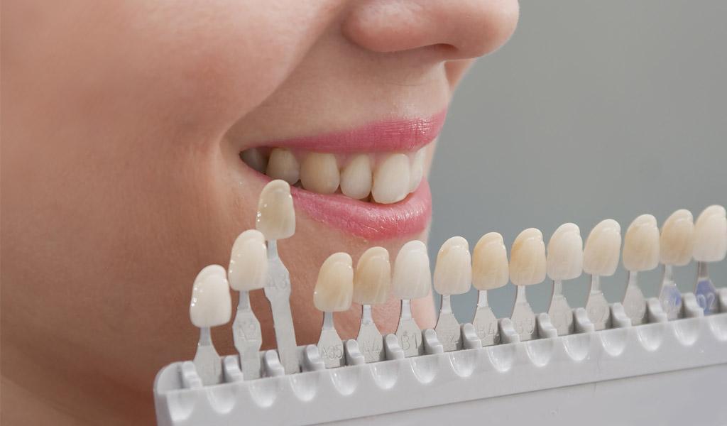 Blanqueamiento dental en Zaidía - Valencia