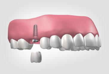 implantes dentales en Zaidía Valencia