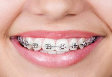 ortodoncia en Zaidía Valencia
